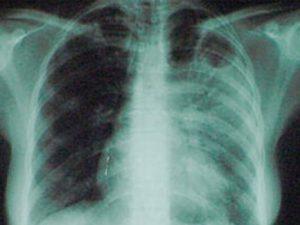 Ученые: туберкулез появился 70 тыс. лет назад в Африке