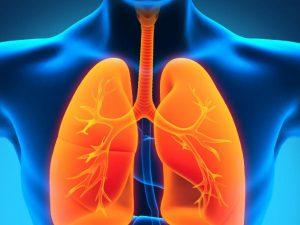Все о пневмонии: симптомы, лечение, профилактика