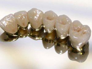 Протезирование зубов металлокерамическими коронками
