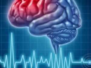 Инфаркт и инсульт: различие и лечение