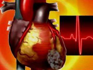 Простуда может стать причиной инфаркта?