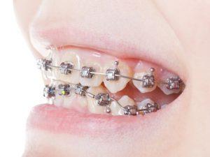 Зачем нужны и какие бывают брекеты на зубы