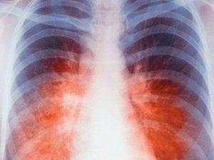 Решением суда все больные туберкулезом в Индии получат необходимое лечение