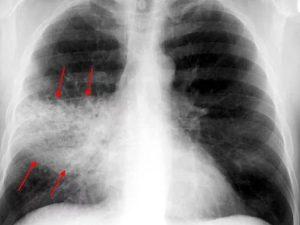 Красноярские врачи смогут лечить пневмонию дистанционно