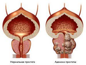 Воспаление предстательной железы. Симптомы и причины