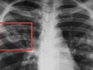 В Югре на 11% снизилась заболеваемость туберкулёзом