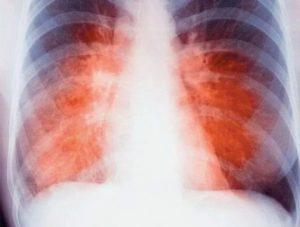 Российские ученые предупреждают о новых мутациях туберкулеза