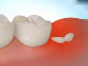 Прием антибиотиков перед удалением зуба мудрости не уменьшает появление и развитие инфекции