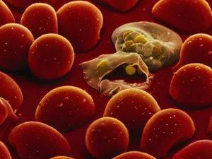 Ожирение защищает от тяжелой формы малярии