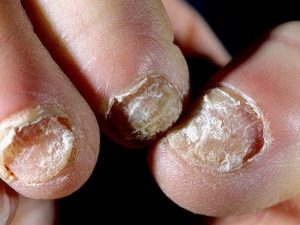 Признаки грибкового поражения ногтей