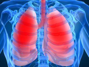 Пневмония, симптомы у взрослых