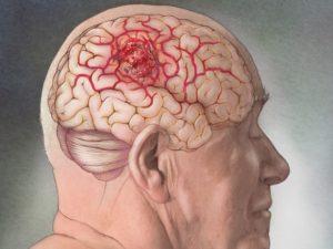 Ученые нашли вирус, способный победить рак мозга