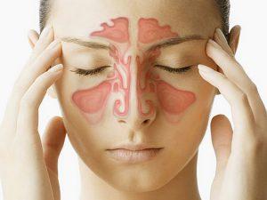 Основные причины развития синусита