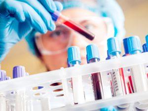 Нарофоминцы смогут бесплатно сдать анализ на ВИЧ-инфекцию с 18 по 20 мая