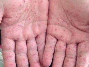 Как защититься от энтеровирусной инфекции, одной из причин асептического менингита