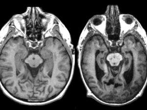 Герпес может вызвать развитие болезни Альцгеймера, стало известно порталу rsute.ru.