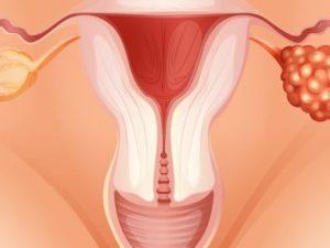 Поликистоз и беременность
