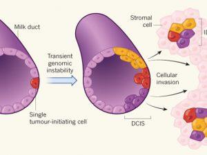 При раке молочной железы основные мутации накапливаются еще в предраковом состоянии