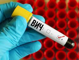 Клеточная терапия ВИЧ-инфекции доказала свою безопасность