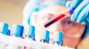 О чем расскажет анализ крови?