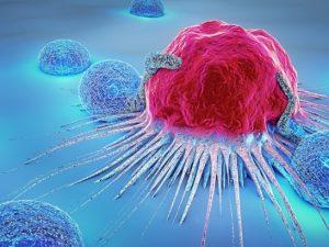 Избыточный вес очередной раз связали с раком