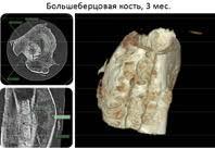 Российские ученые представили революционное средство для восстановления костей