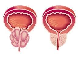 Эффективность липидостерольного экстракта serenoa repens в лечении доброкачественной гиперплазии предстательной железы и симптомов нижних мочевых путей