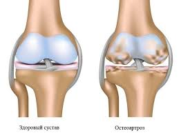 Разработана эффективное средство от остеоартроза