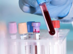 Разработан новый тест для раннего выявления распространенной формы деменции