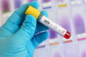 Ученые приблизились к получению работающей терапии против ВИЧ