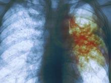 Туберкулез обманывает иммунную систему, переключая ее внимание