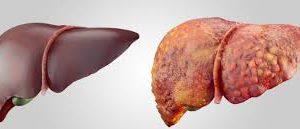 Стеатоз печени и поджелудочной железы