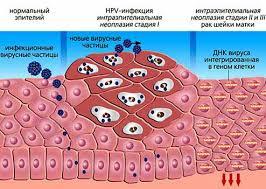 Вирус папилломы человека: пора развеять опасные мифы