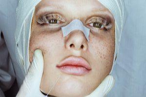 Росздравнадзор закрыл 87 клиник пластической хирургии за полгода