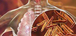 Антибиотики против туберкулёза. История