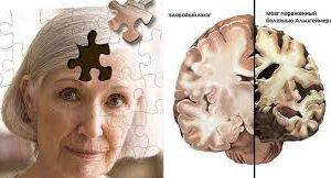 Словацкая компания добилась некоторого успеха в разработке терапии болезни Альцгеймера