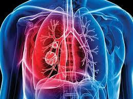 Новое соединение убивает самые опасные штаммы туберкулеза