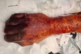 Мужчина заразился смертельной инфекцией после того, как его облизала собака