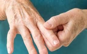 В России зарегистрирован упадацитиниб для лечения ревматоидного артрита
