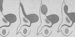Сравнительная оценка различных методов диагностики аномалий урахуса у детей