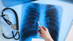 Туберкулёз: отвечаем на самые частые вопросы