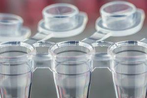 «ДНК-Технология» зарегистрировала тест-систему для выявления коронавируса