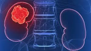 Ipsen представила результаты исследования кабозантиниба и ниволумаба в терапии почечно-клеточного рака