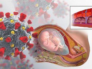 Исследование показало, как коронавирус влияет на плаценту