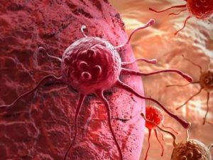 Ученые нашли способ помочь иммунитету бороться с раком