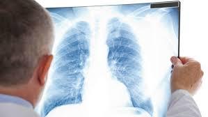 Медики назвали простые упражнения для здоровья легких