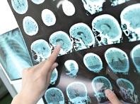 Неврологи смогли обратить развитие рассеянного склероза вспять