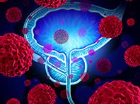 Ученые победили сразу два типа рака простаты, включая самый агрессивный