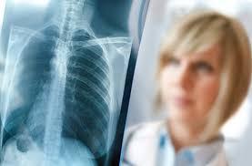 Роспотребнадзор: туберкулезом может заразиться и заболеть любой человек