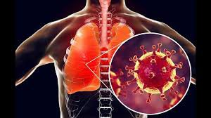 Ученые установили, как серьезные инфекции разрушают иммунную систему